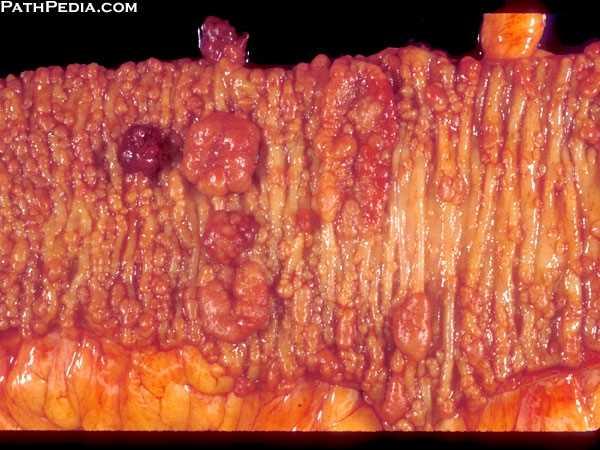 Gross Pathology images of Intestinelarge by PathPediacom